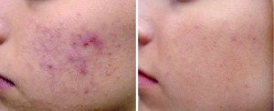 active_acne_sult_rn