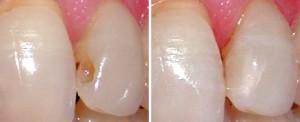 cavity_preparation_dr_semez