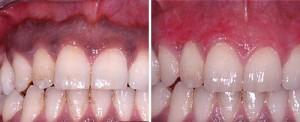 gum_pigmentation_dr_maden