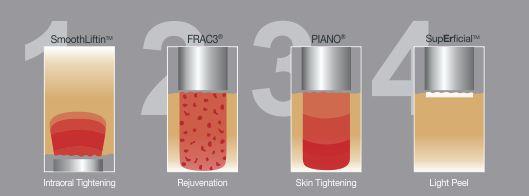 fotona4d-laserhoito-perustuu-neljan-hoitomuodon-yhteisvaikutukseen